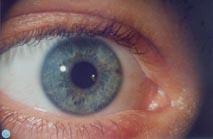 Die Irisdiagnose – Kurzfassung